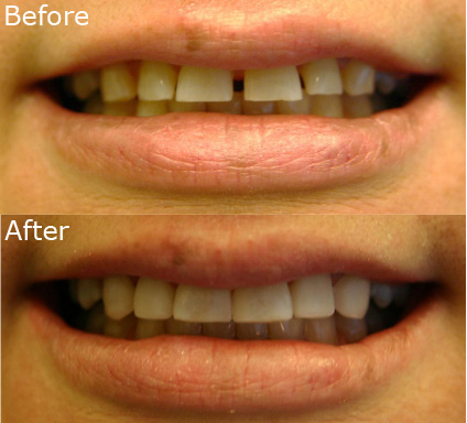 Veneer Before After