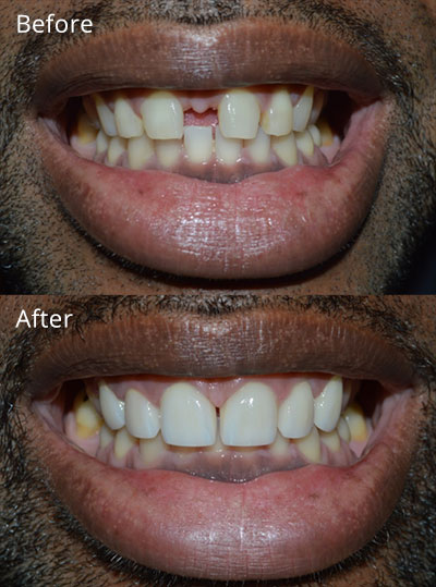 Veneer Before and After