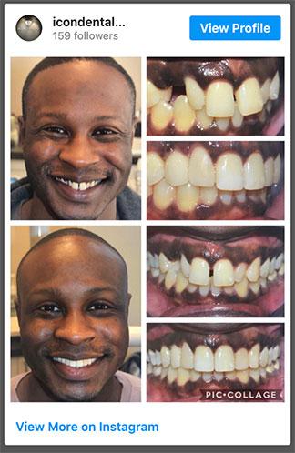 Follow ICON Dental SF on Instagram
